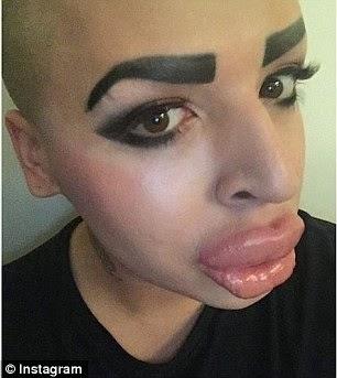 Ότι πιο ηλίθιο έχει κάνει άντρας ποτέ - Έδωσε χιλιάδες λίρες για να μοιάσει στην Kardashian [photos] - Φωτογραφία 6