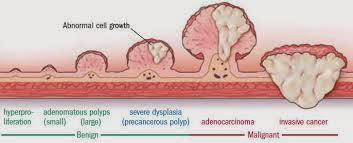 Πολύποδας παχέος εντέρου. Τι είναι, ποια τα συμπτώματα, ποιοι κινδυνεύουν και ποια η κατάλληλη διατροφή για πρόληψη; - Φωτογραφία 4