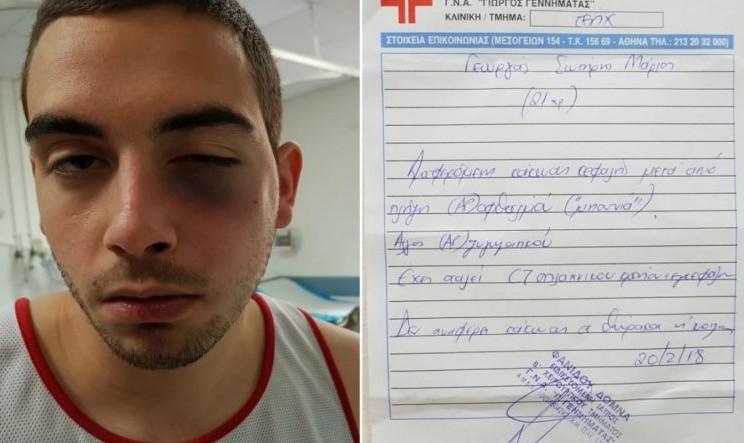 Γνωστός Ελληνας επιχειρηματίας καταγγέλει: Έδειραν τον γιο μου σε γνωστό γυμναστήριο του Αλίμου - Φωτογραφία 1