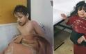 Δραματικές εικόνες: 500 άνθρωποι δηλητηριάστηκαν από χημική επίθεση στην Συρία που σκότωσε 43 ανθρώπους