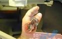 ΣΟΚΑΡΙΣΤΙΚΕΣ ΕΙΚΟΝΕΣ: Τον δάγκωσε αράχνη και δεν έδωσε σημασία…ΔΕΙΤΕ πως έγινε όμως μέσα σε 9 μέρες! [photos] - Φωτογραφία 4