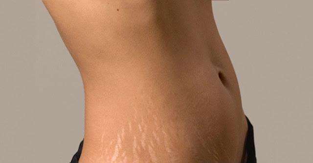 Ραγάδες στο δέρμα: Πώς δημιουργούνται; - Φωτογραφία 1
