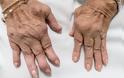 Μια νέα θεραπευτική στρατηγική για τη ρευματοειδή αρθρίτιδα ανακάλυψαν Έλληνες και ξένοι επιστήμονες