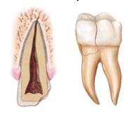 Kάταγμα δοντιού με πόνο στο δάγκωμα. Μήπως έχει σπάσει δόντι; - Φωτογραφία 2