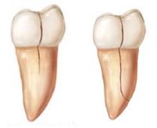 Kάταγμα δοντιού με πόνο στο δάγκωμα. Μήπως έχει σπάσει δόντι; - Φωτογραφία 4