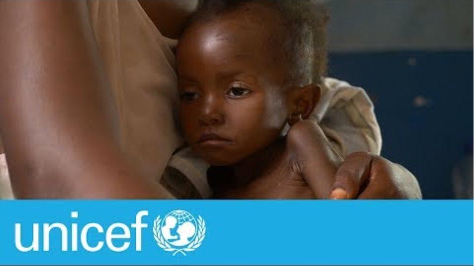 Από πείνα οι μισοί θάνατοι παιδιών στην Αφρική - Φωτογραφία 2