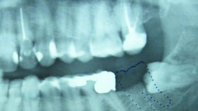 Ένα δόντι μεγάλωνε γεννητικά όργανα - Φωτογραφία 1