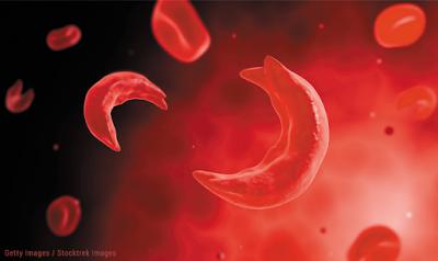 Δρεπανοκυτταρική και Μικροδρεπανοκυτταρική Αναιμία - Φωτογραφία 1