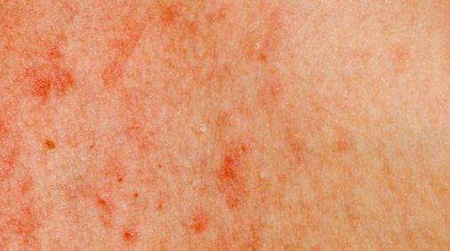 Λευχαιμία: Τα ύποπτα σημάδια στο δέρμα (Photos) - Φωτογραφία 5