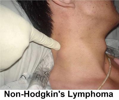 Τι το λέμφωμα Hodgkin's και ποια η διαφορά από την μη Hodgkin's - Φωτογραφία 1