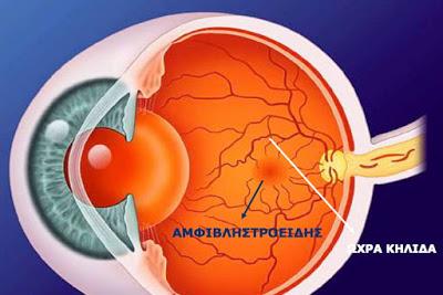 Αιτίες απώλειας όρασης και τρόποι αντιμετώπισης - Φωτογραφία 4