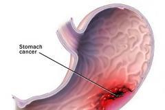 Καρκίνος του στομάχου. Συμπτώματα και μέτρα πρόληψης. Ποια η κατάλληλη διατροφή;