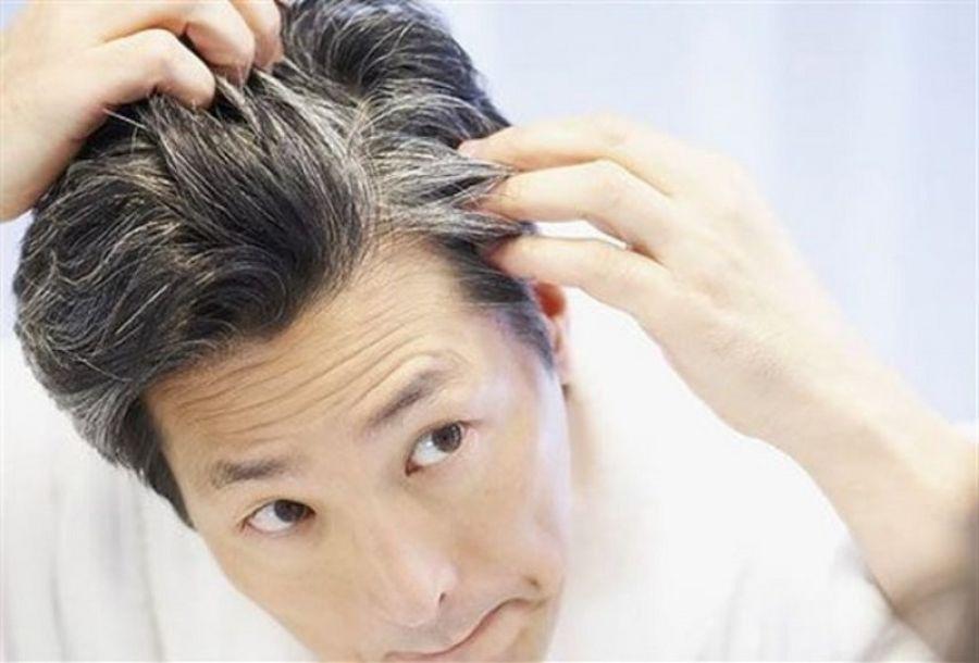 Ερευνητές βρήκαν τον λόγο που τα μαλλιά μπορεί να ασπρίσουν σε μια νύχτα - Φωτογραφία 1