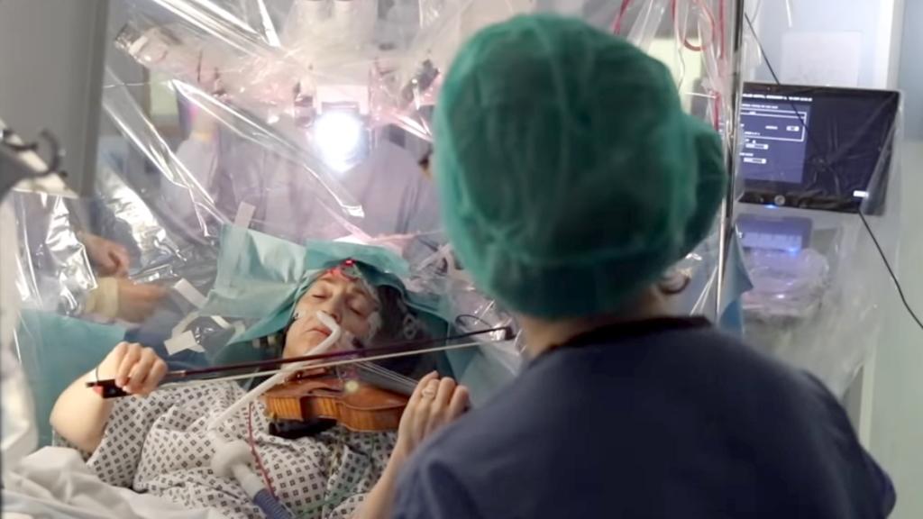 Έπαιζε βιολί ενώ της αφαιρούσαν όγκο από το κεφάλι της για ελέγχουν το χειρουργείο - Φωτογραφία 1