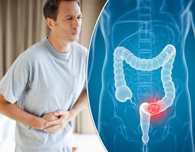 Ποιοι κινδυνεύουν από τον καρκίνο του παχέος εντέρου; Τροφές βοηθούν στην πρόληψη - Φωτογραφία 1