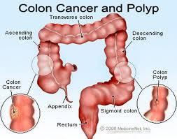 Ποιοι κινδυνεύουν από τον καρκίνο του παχέος εντέρου; Τροφές βοηθούν στην πρόληψη - Φωτογραφία 2