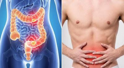 Ποιοι κινδυνεύουν από τον καρκίνο του παχέος εντέρου; Τροφές βοηθούν στην πρόληψη - Φωτογραφία 3
