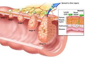 Ποιοι κινδυνεύουν από τον καρκίνο του παχέος εντέρου; Τροφές βοηθούν στην πρόληψη - Φωτογραφία 4