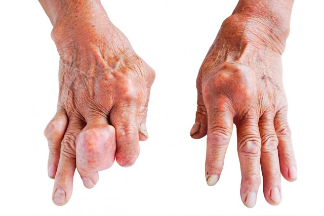 Ουρικό οξύ, ουρική αρθρίτιδα και νεφρική βλάβη; Ποιοι κινδυνεύουν; Ποια η σωστή διατροφή - Φωτογραφία 1