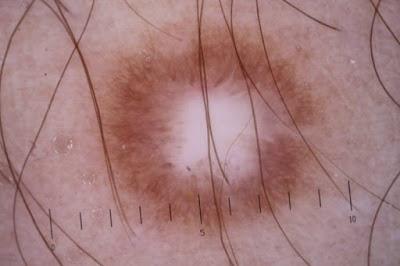 Δερματοΐνωμα δερματική βλάβη που μοιάζει με σπυράκι, είναι σκληρό σαν να έχει κάτι μέσα - Φωτογραφία 1