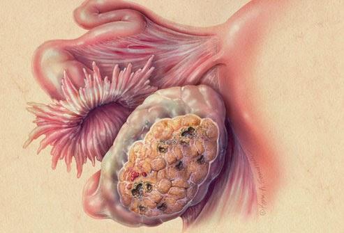 Ο καρκίνος των ωοθηκών προκαλεί πόνο, πρήξιμο χαμηλά στην κοιλιά, αίσθημα φουσκώματος, αύξηση βάρους, κούραση - Φωτογραφία 4