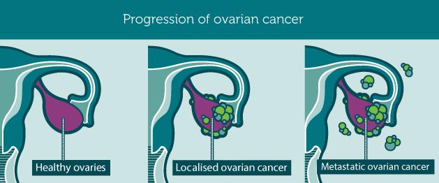 Ο καρκίνος των ωοθηκών προκαλεί πόνο, πρήξιμο χαμηλά στην κοιλιά, αίσθημα φουσκώματος, αύξηση βάρους, κούραση - Φωτογραφία 6