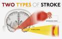 Τι είναι Ισχαιμικό και τι Αιμορραγικό Εγκεφαλικό Επεισόδιο; Ποιo είναι πιο συχνό και ποιες οι αιτίες που τα προκαλούν; - Φωτογραφία 2