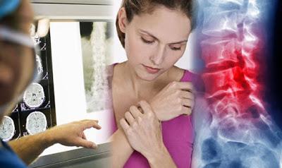 Καρκίνος των οστών, Οστεοσάρκωμα, σάρκωμα Ewing, χονδροσάρκωμα. Ποια τα συμπτώματα; - Φωτογραφία 1