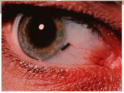 Ξένο σώμα στο μάτι. Τι πρέπει να κάνετε αν μπει κάτι στο μάτι σας; Πρώτες βοήθειες - Φωτογραφία 1