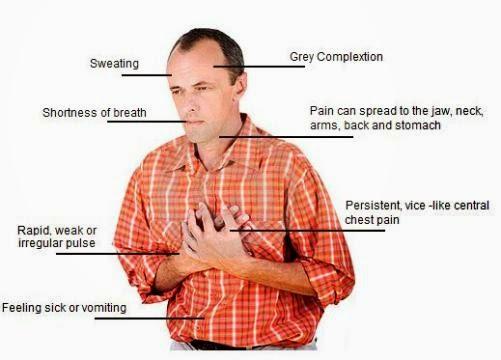 Προειδοποιητικά συμπτώματα για καρδιακή ανακοπή. Πόνο στο στήθος, δύσπνοια, ζάλη μπορεί να είναι από καρδιά - Φωτογραφία 2