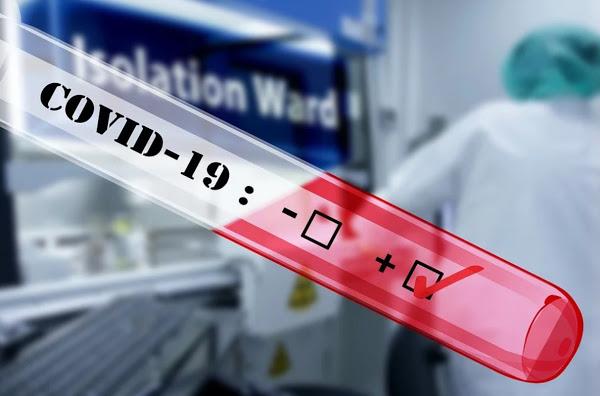 Έρευνα Πόσο κοστίζουν τα μοριακά και τα rapid τεστ για τη διάγνωση του κοροναϊού; - Φωτογραφία 1