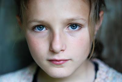 Σύνδρομο RETT Τι είναι και γιατί επηρεάζει κυρίως τα κορίτσια; Ποια τα συμπτώματα; - Φωτογραφία 1