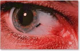Βαρυστομαχιά, καούρες, δυσφορία, μεθύσι, hangover, κάψιμο, ξένο σώμα στο μάτι. Πρώτες βοήθειες - Φωτογραφία 6