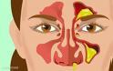 Τύποι εκκριμάτων της μύτης και τι δείχνουν για την υγεία σας
