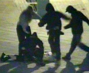 Επιτέθηκαν σε ανήλικο στα Χανιά με σιδερογροθιές για να του αρπάξουν το κινητό - Φωτογραφία 1