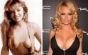 Τα χειρότερα ψεύτικα στήθη του Χόλιγουντ - Φωτογραφία 6