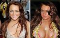 Τα χειρότερα ψεύτικα στήθη του Χόλιγουντ - Φωτογραφία 7