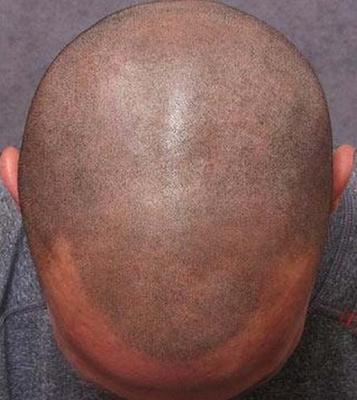 Τατουάζ κατά της φαλάκρας - Φωτογραφία 3