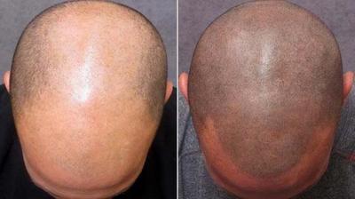 Τατουάζ κατά της φαλάκρας - Φωτογραφία 7