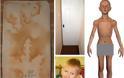 Σοκ στη Bρετανία: Άφηναν το παιδί τους να λιμοκτονεί και το βασάνιζαν μέχρι να πεθάνει - Φωτογραφία 2