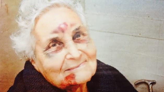 H φωτογραφία από το νησί της Κεφαλονιάς που ΣΥΓΚΛΟΝΙΖΕΙ - Η ηλικιωμένη που πληγώθηκε από το σεισμό και χαμογελά με ελπίδα - Φωτογραφία 2