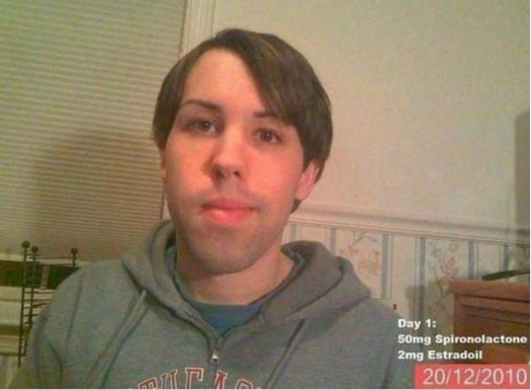 ΣΟΚΑΡΙΣΤΙΚΟ: Νεαρός έπαιρνε θηλυκές ορμόνες για 14 μήνες - Δείτε πως έγινε [photos] - Φωτογραφία 2