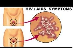 AIDS / HIV : Τα συμπτώματα που επιβάλλεται να τα γνωρίζουν ΟΛΟΙ!